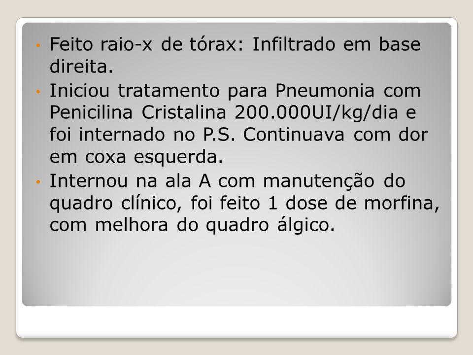 Feito raio-x de tórax: Infiltrado em base direita. Iniciou tratamento para Pneumonia com Penicilina Cristalina 200.000UI/kg/dia e foi internado no P.S