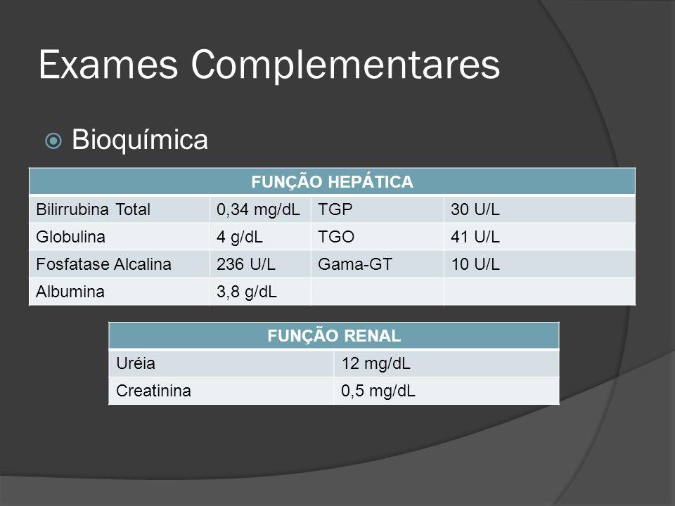 Exames Complementares Bioquímica FUNÇÃO HEPÁTICA Bilirrubina Total0,34 mg/dLTGP30 U/L Globulina4 g/dLTGO41 U/L Fosfatase Alcalina236 U/LGama-GT10 U/L