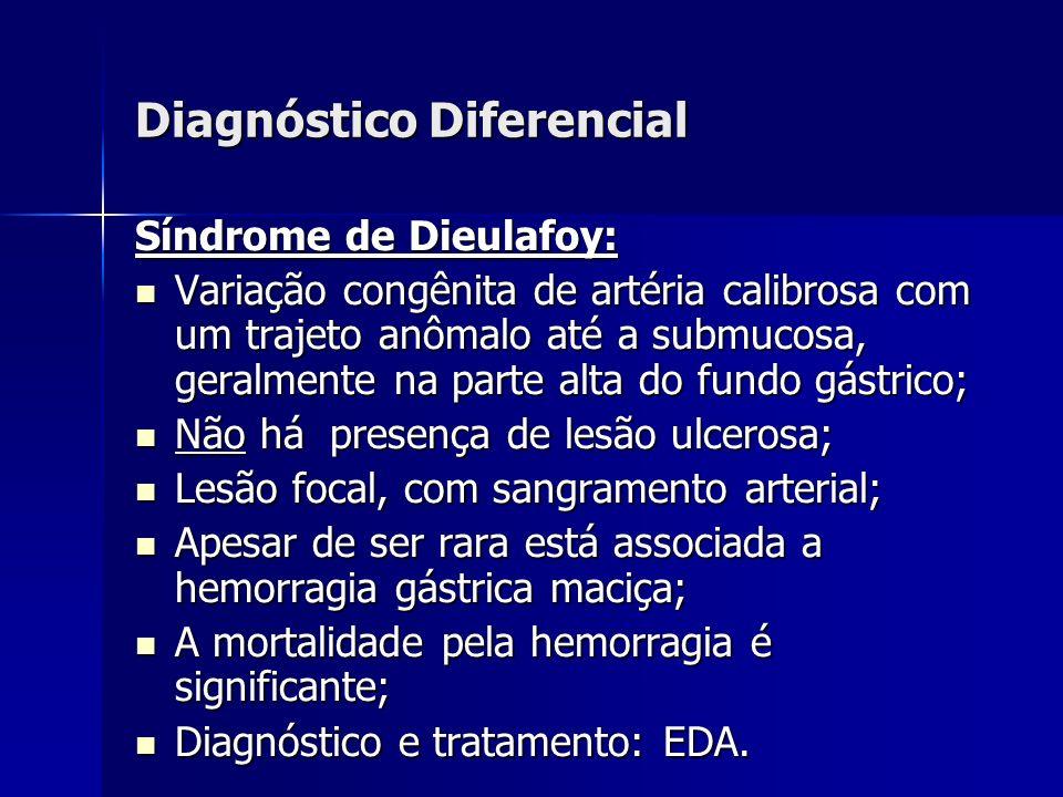 Diagnóstico Diferencial Síndrome de Dieulafoy: Variação congênita de artéria calibrosa com um trajeto anômalo até a submucosa, geralmente na parte alt