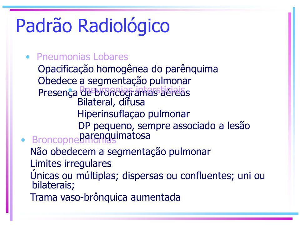 Padrão Radiológico Pneumonias Lobares Opacificação homogênea do parênquima Obedece a segmentação pulmonar Presença de broncogramas aéreos Broncopneumo