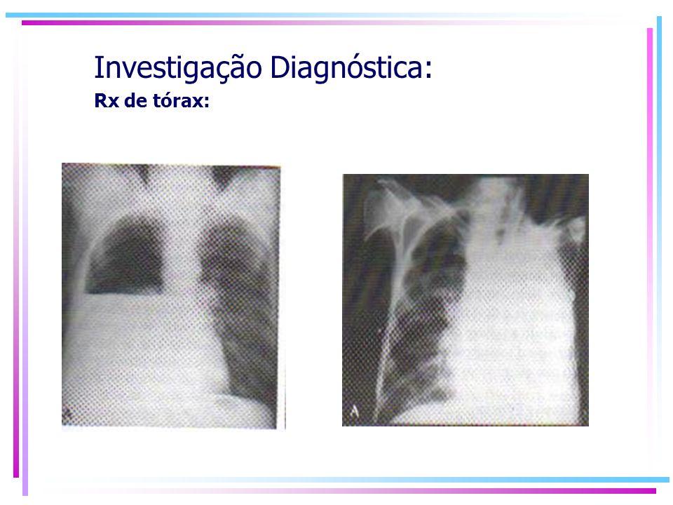 Investigação Diagnóstica: Rx de tórax:
