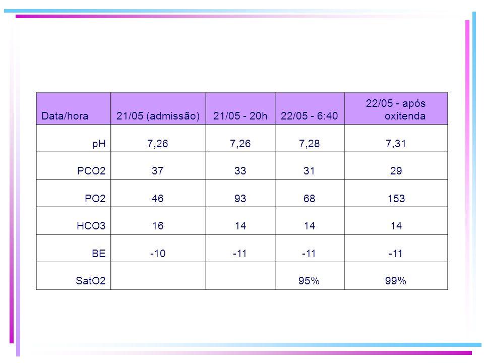 Data/hora21/05 (admissão)21/05 - 20h22/05 - 6:40 22/05 - após oxitenda pH7,26 7,287,31 PCO237333129 PO2469368153 HCO31614 BE-10-11 SatO2 95%99%