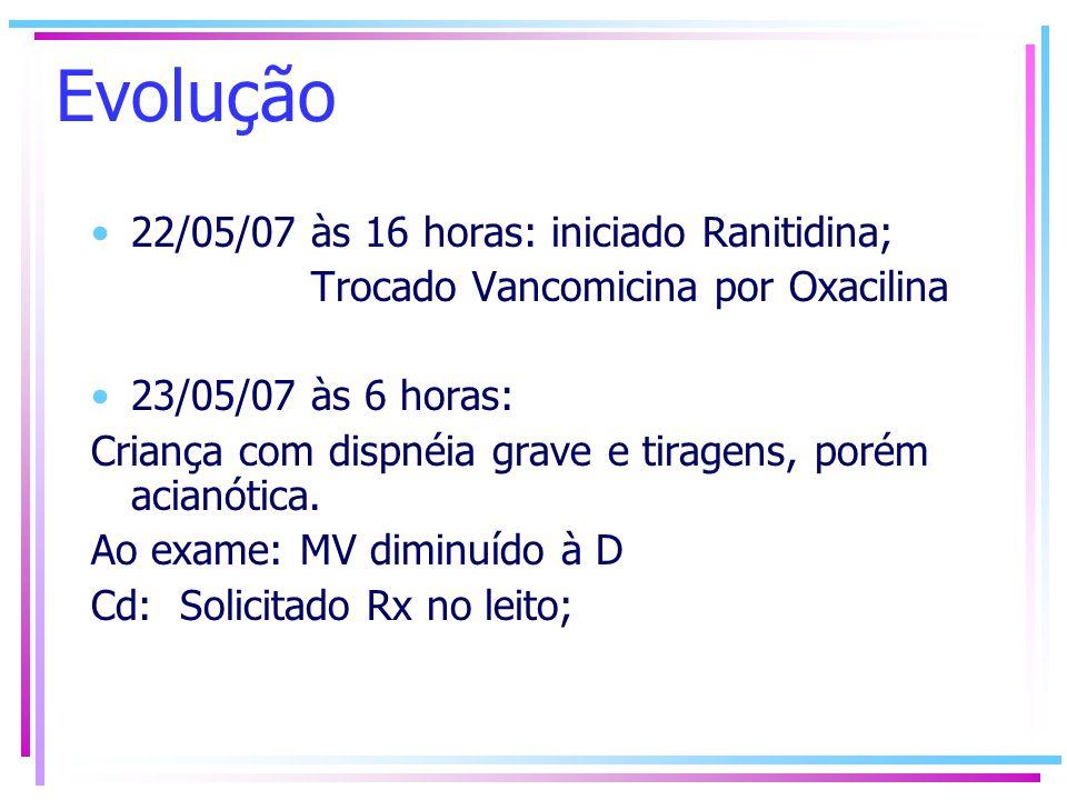 Evolução 22/05/07 às 16 horas: iniciado Ranitidina; Trocado Vancomicina por Oxacilina 23/05/07 às 6 horas: Criança com dispnéia grave e tiragens, poré