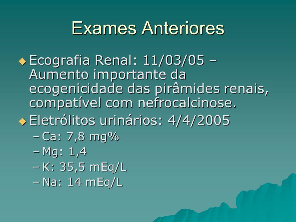 Exames Anteriores Ecografia Renal: 11/03/05 – Aumento importante da ecogenicidade das pirâmides renais, compatível com nefrocalcinose. Ecografia Renal