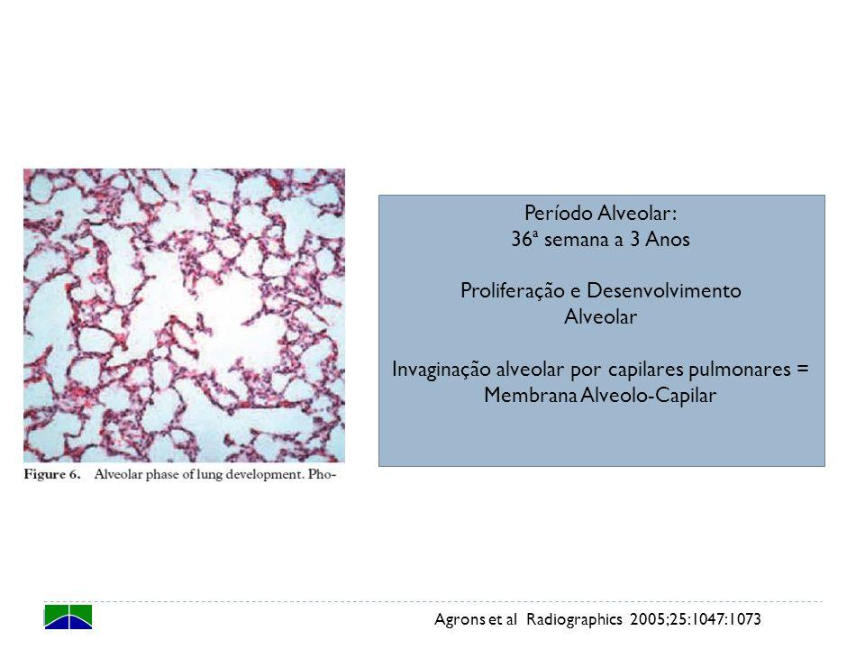 Agrons et al Radiographics 2005;25:1047:1073 Período Alveolar: 36ª semana a 3 Anos Proliferação e Desenvolvimento Alveolar Invaginação alveolar por ca