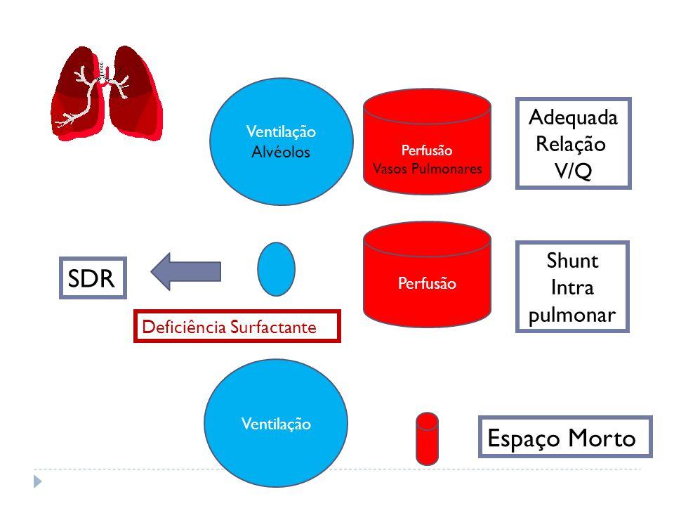 Perfusão Vasos Pulmonares Ventilação Alvéolos Perfusão Shunt Intra pulmonar Ventilação Espaço Morto SDR Deficiência Surfactante Adequada Relação V/Q