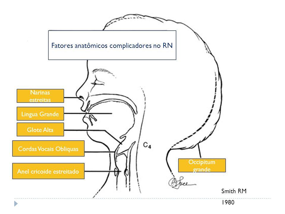 Smith RM 1980 Fatores anatômicos complicadores no RN Narinas estreitas Lingua Grande Glote Alta Cordas Vocais Obliquas Anel cricoide estreitado Occipi