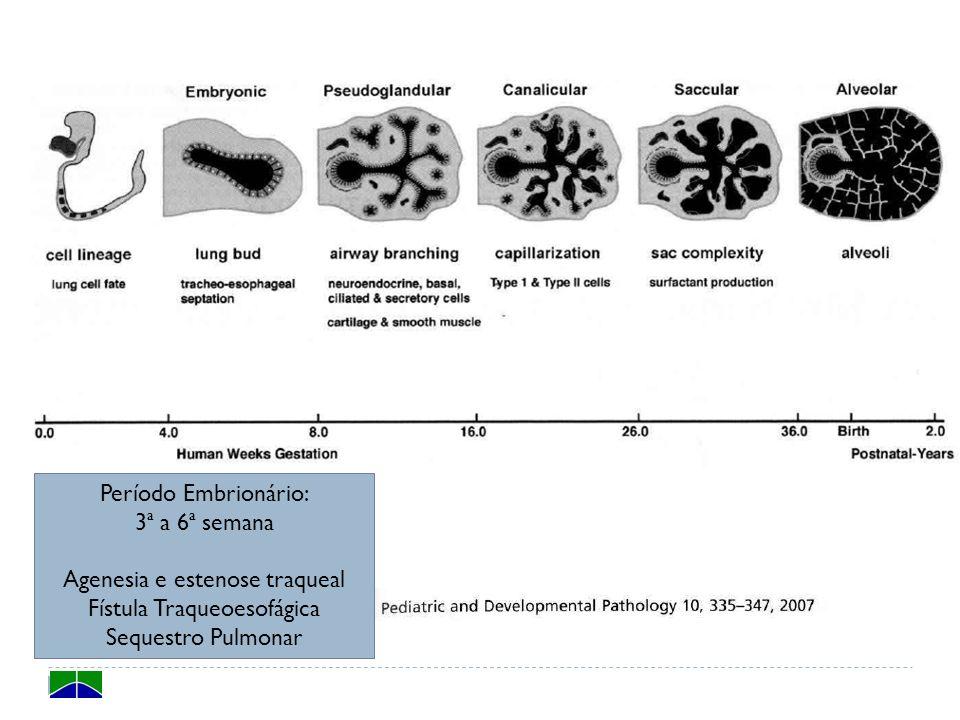 Período Embrionário: 3ª a 6ª semana Agenesia e estenose traqueal Fístula Traqueoesofágica Sequestro Pulmonar