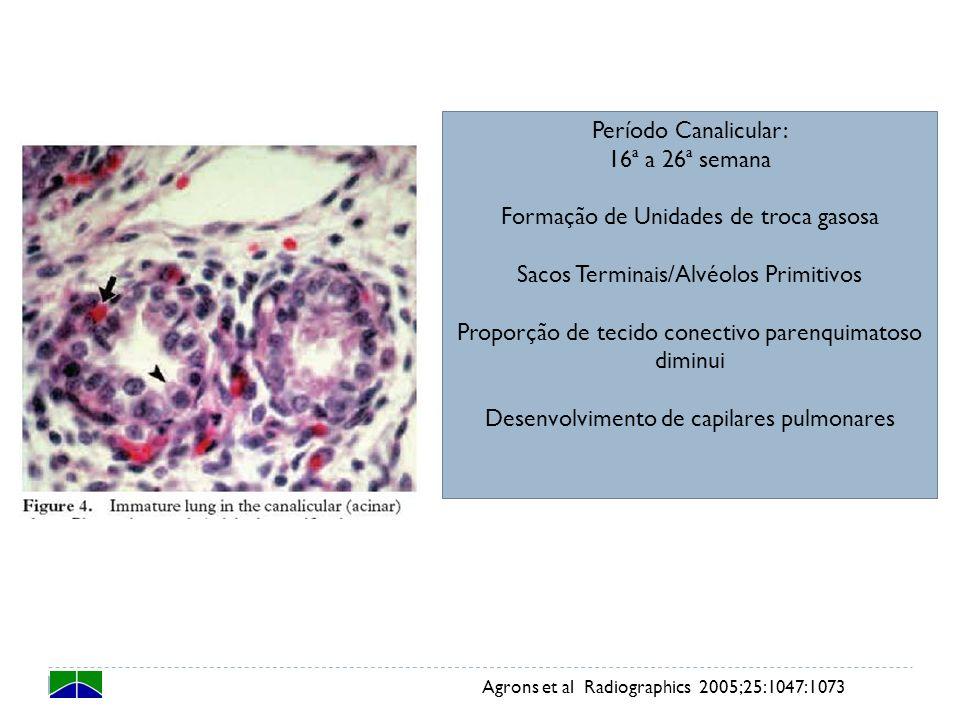 Período Sacular: 26ª a 36ª semana Capilares fazem protuberância para o interior dos alvéolos primitivos Aumento da superfície de troca Desenvolvimento e maturação do sistema surfactante