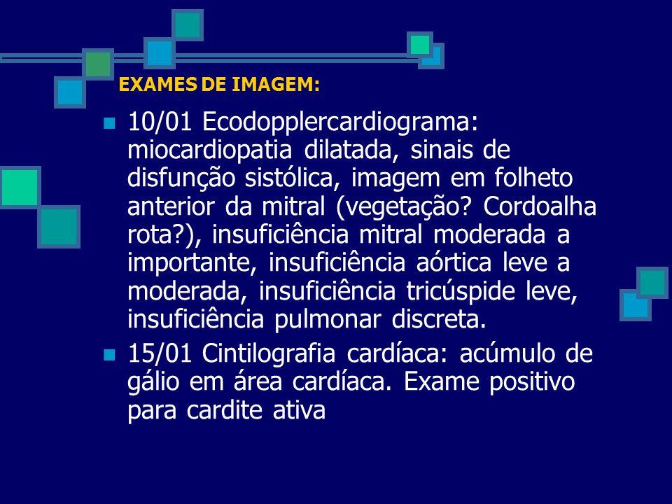 EXAMES DE IMAGEM: 10/01 Ecodopplercardiograma: miocardiopatia dilatada, sinais de disfunção sistólica, imagem em folheto anterior da mitral (vegetação