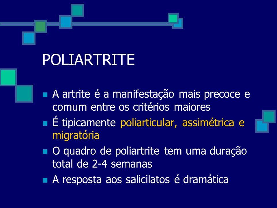 POLIARTRITE A artrite é a manifestação mais precoce e comum entre os critérios maiores É tipicamente poliarticular, assimétrica e migratória O quadro