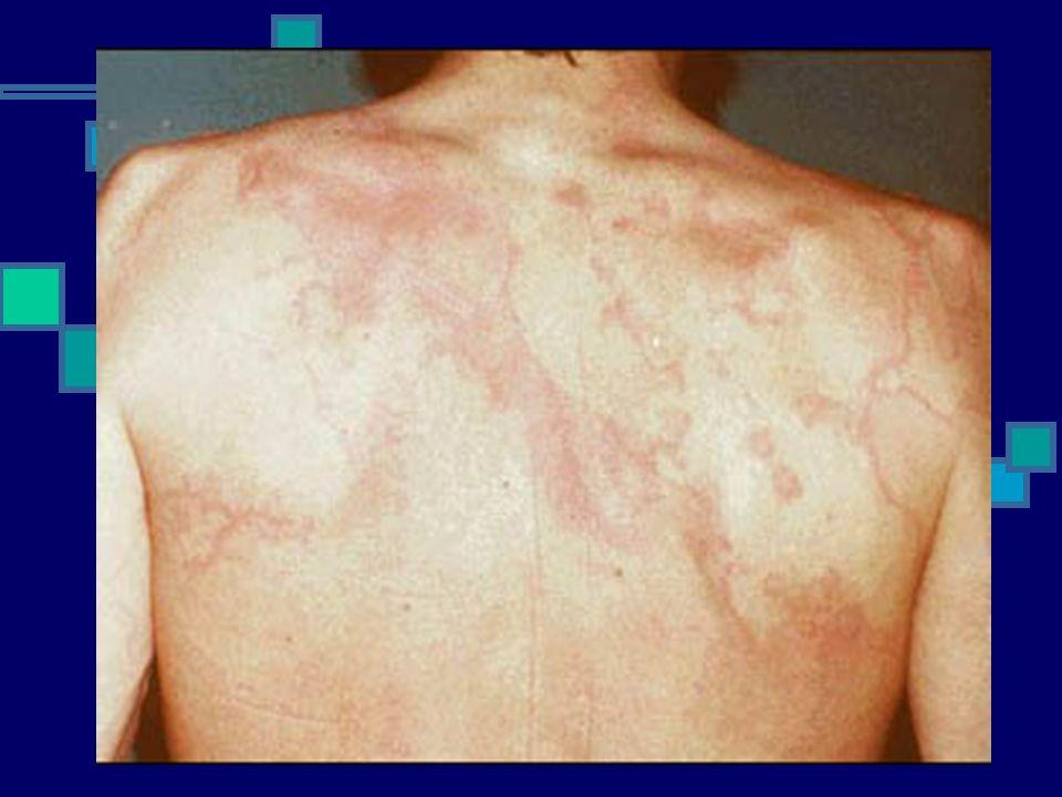 ERITEMA MARGINATUM É um rash eritematoso máculo-papular, que costuma se estender de forma centrípeta A lesão não é pruriginosa, nem dolorosa, não prod