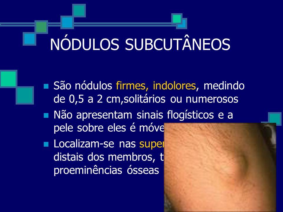 NÓDULOS SUBCUTÂNEOS São nódulos firmes, indolores, medindo de 0,5 a 2 cm,solitários ou numerosos Não apresentam sinais flogísticos e a pele sobre eles