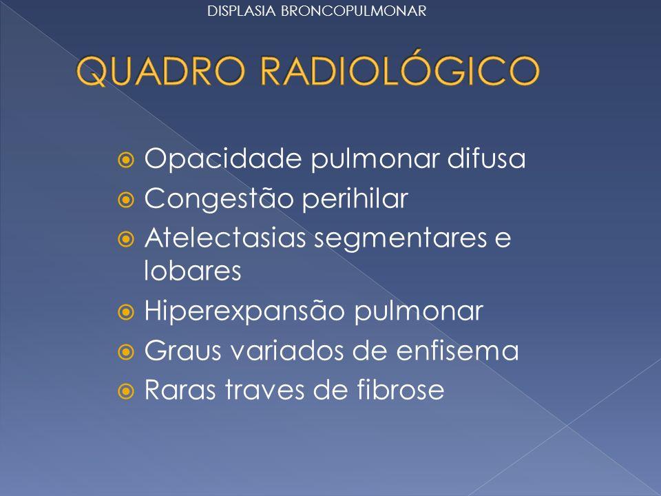 Opacidade pulmonar difusa Congestão perihilar Atelectasias segmentares e lobares Hiperexpansão pulmonar Graus variados de enfisema Raras traves de fibrose DISPLASIA BRONCOPULMONAR