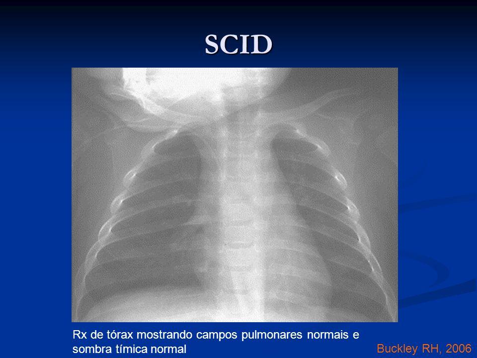 Rx de tórax mostrando campos pulmonares normais e sombra tímica normal Buckley RH, 2006 SCID