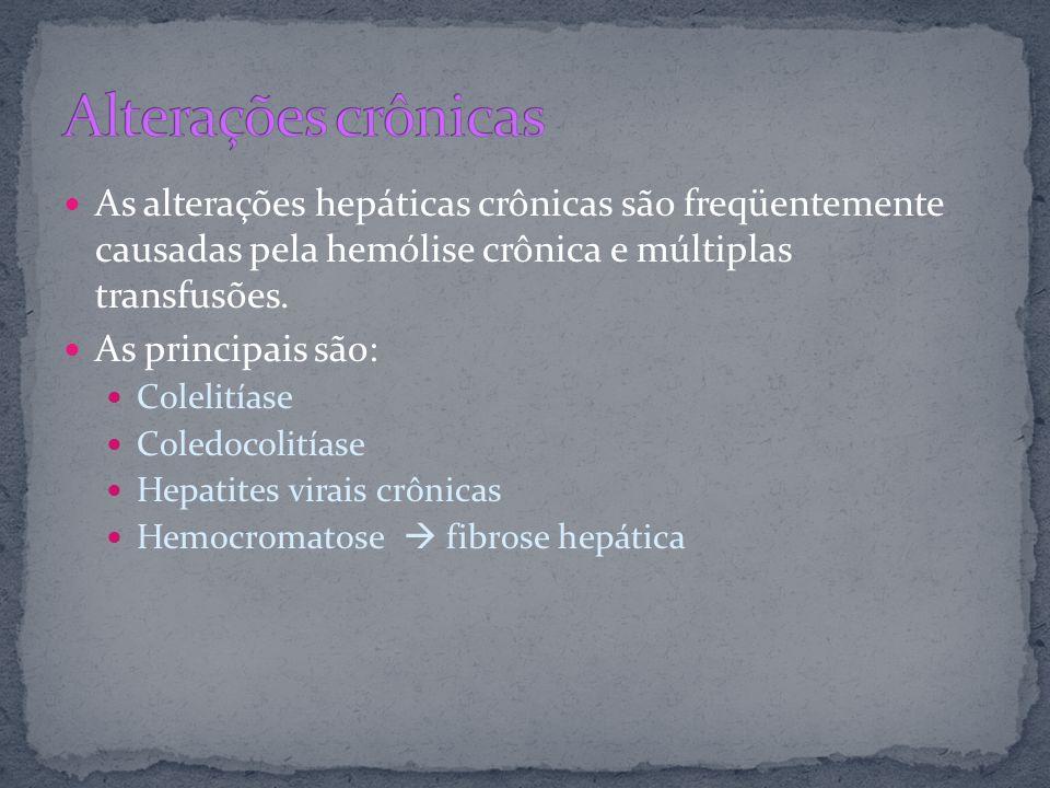 As alterações hepáticas crônicas são freqüentemente causadas pela hemólise crônica e múltiplas transfusões. As principais são: Colelitíase Coledocolit