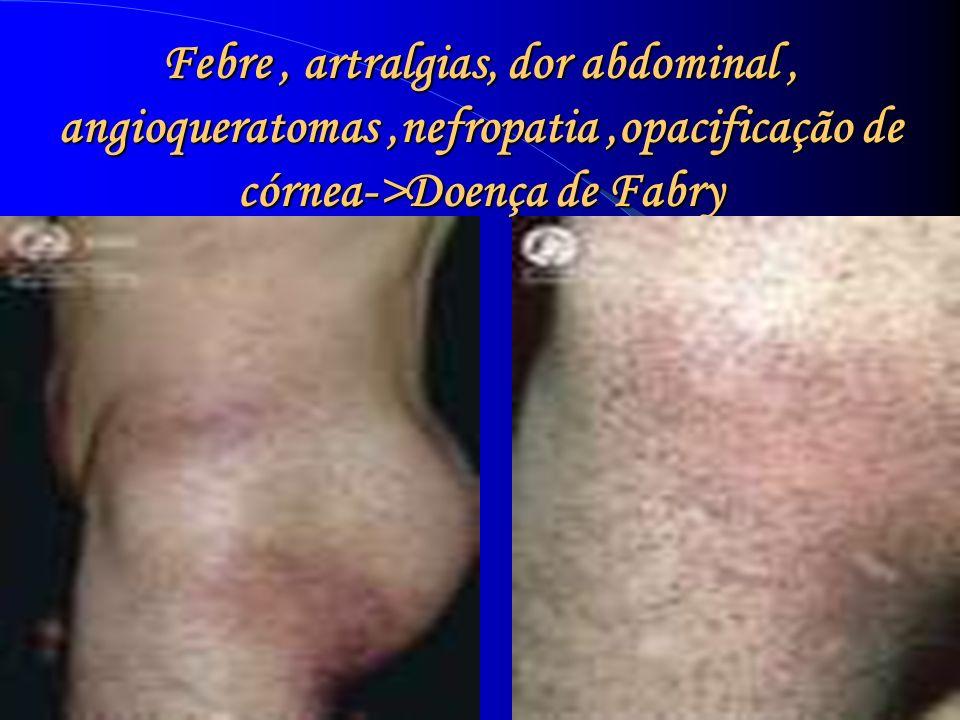 Febre, artralgias, dor abdominal, angioqueratomas,nefropatia,opacificação de córnea->Doença de Fabry