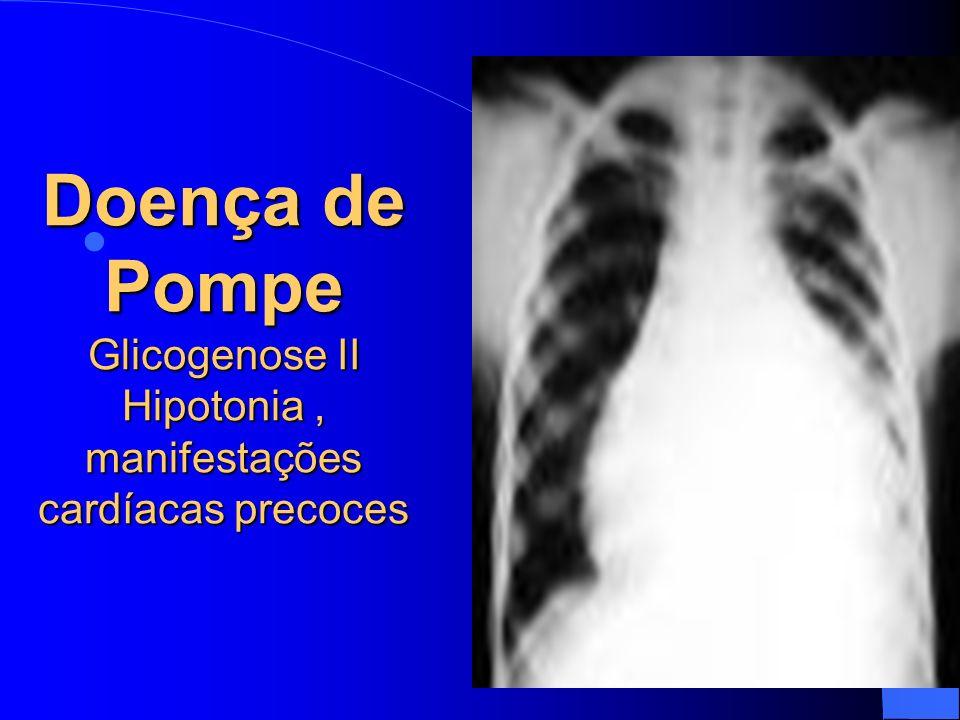 Doença de Pompe Glicogenose II Hipotonia, manifestações cardíacas precoces