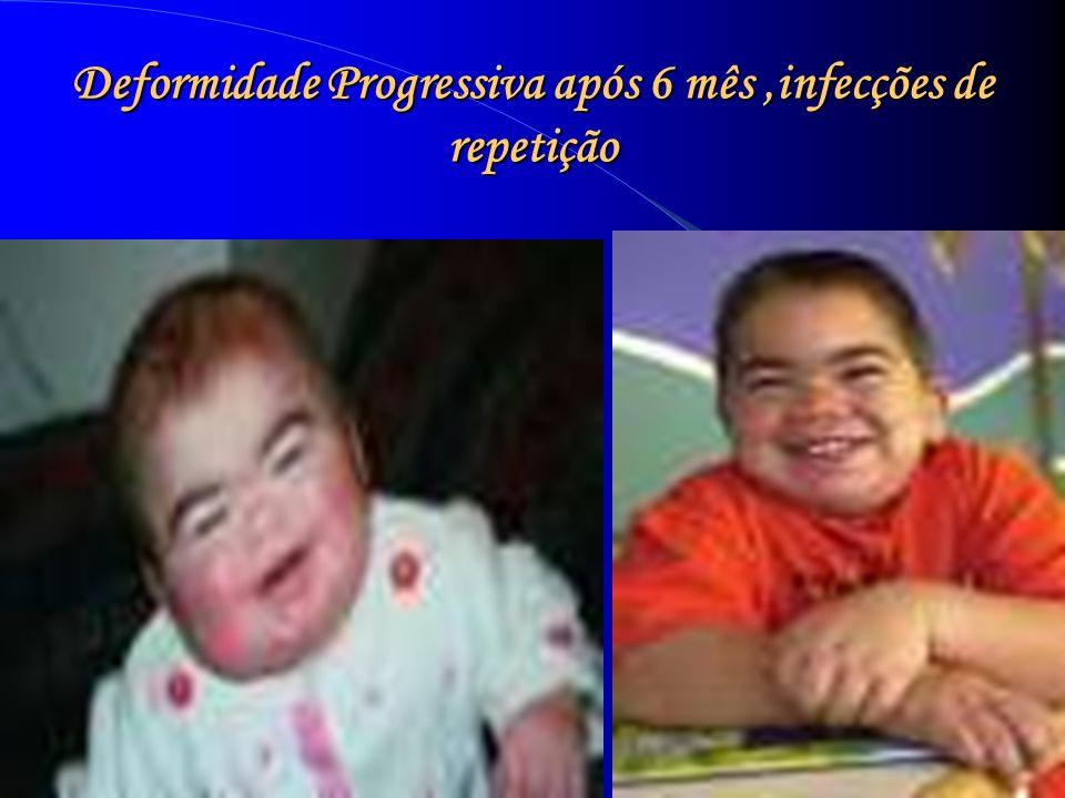 Deformidade Progressiva após 6 mês,infecções de repetição