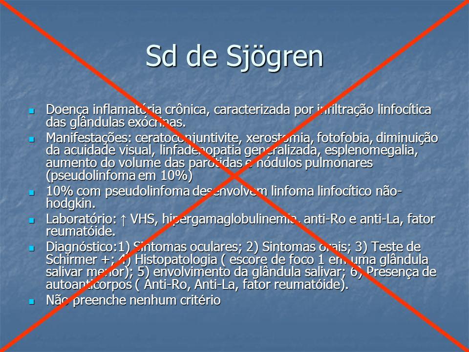 Sd de Sjögren Doença inflamatória crônica, caracterizada por infiltração linfocítica das glândulas exócrinas. Doença inflamatória crônica, caracteriza