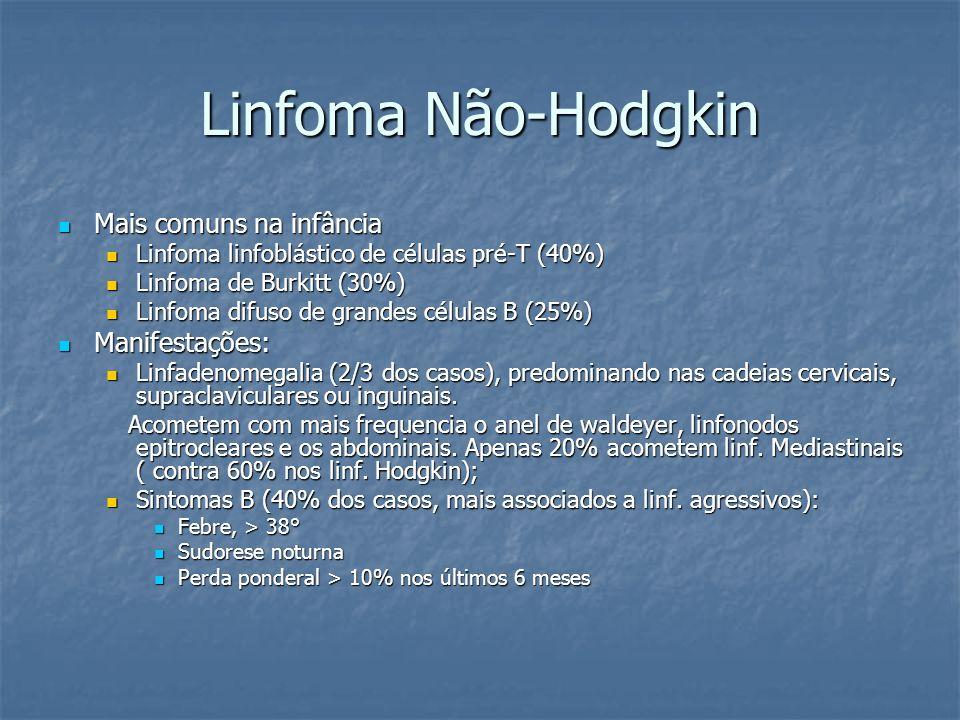 Linfoma Não-Hodgkin Mais comuns na infância Mais comuns na infância Linfoma linfoblástico de células pré-T (40%) Linfoma linfoblástico de células pré-