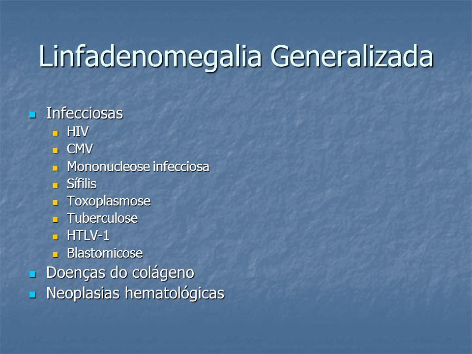 Linfadenomegalia Generalizada Infecciosas Infecciosas HIV HIV CMV CMV Mononucleose infecciosa Mononucleose infecciosa Sífilis Sífilis Toxoplasmose Tox