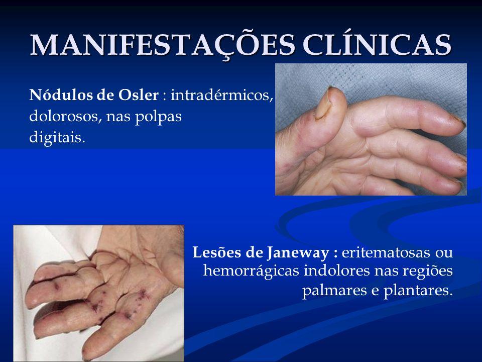MANIFESTAÇÕES CLÍNICAS Nódulos de Osler : intradérmicos, dolorosos, nas polpas digitais. Lesões de Janeway : eritematosas ou hemorrágicas indolores na