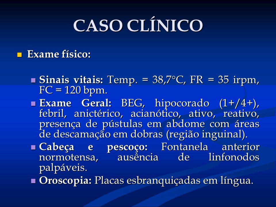 CASO CLÍNICO Exame físico: Exame físico: Sinais vitais: Temp. = 38,7°C, FR = 35 irpm, FC = 120 bpm. Sinais vitais: Temp. = 38,7°C, FR = 35 irpm, FC =
