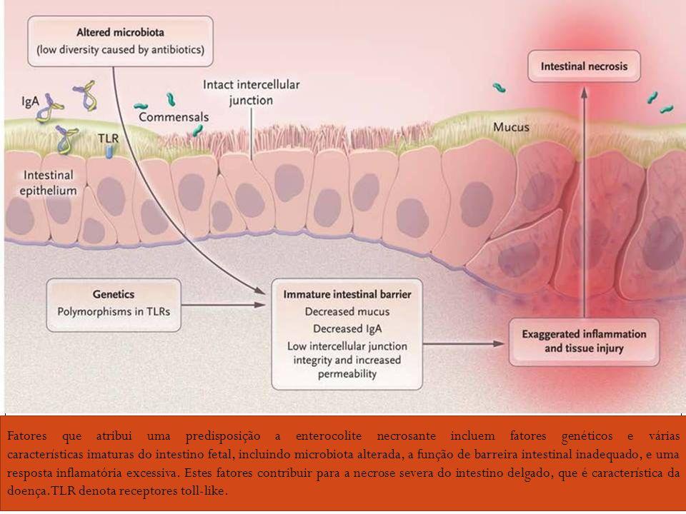 Fatores que atribui uma predisposição a enterocolite necrosante incluem fatores genéticos e várias características imaturas do intestino fetal, inclui