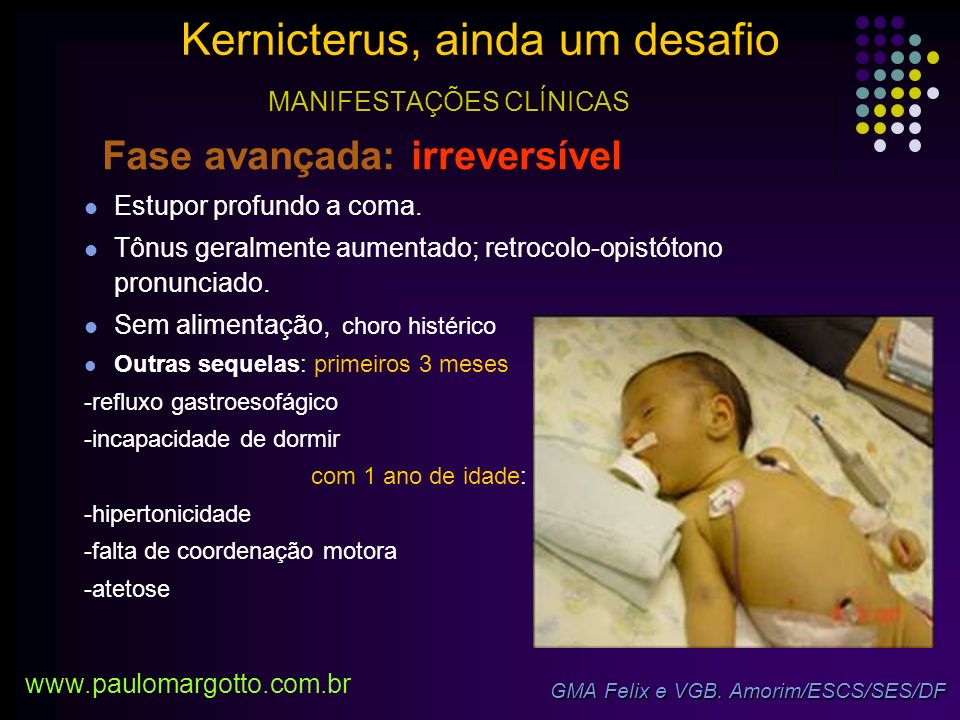 Em 2004: Academia Americana de Pediatria Fase inicial: letargia, hipotonia.