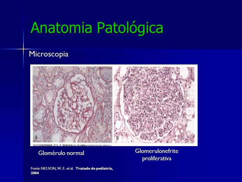 Anatomia Patológica Microscopia Glomérulo normal Glomerulonefrite proliferativa Fonte: NELSON, W. E. et al. Tratado de pediatria, 2004