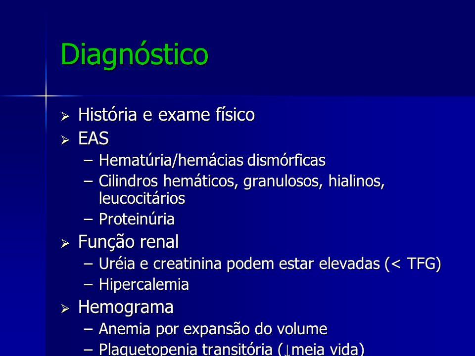 Diagnóstico História e exame físico História e exame físico EAS EAS –Hematúria/hemácias dismórficas –Cilindros hemáticos, granulosos, hialinos, leucoc