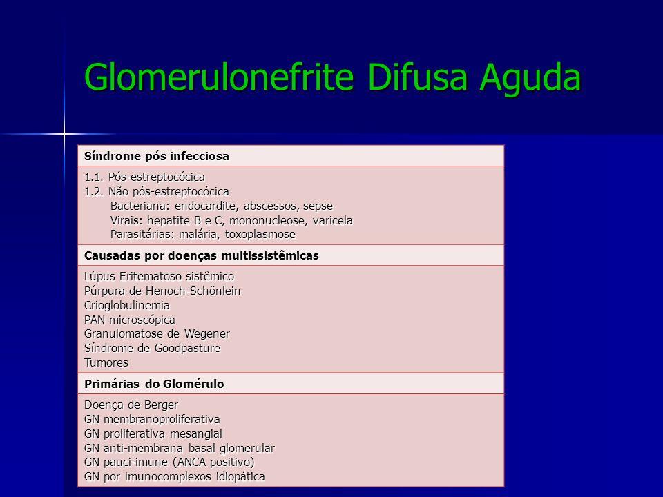 Glomerulonefrite Difusa Aguda Causas de Síndrome nefrítica Causas de Síndrome nefrítica Síndrome pós infecciosa 1.1. Pós-estreptocócica 1.2. Não pós-e