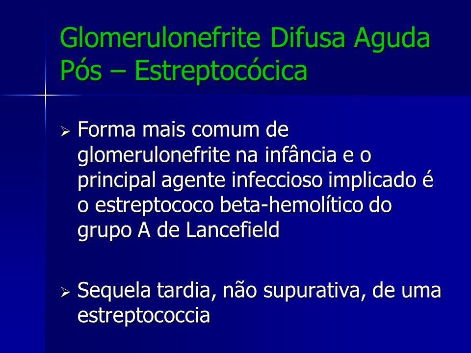 Glomerulonefrite Difusa Aguda Pós – Estreptocócica Forma mais comum de glomerulonefrite na infância e o principal agente infeccioso implicado é o estr
