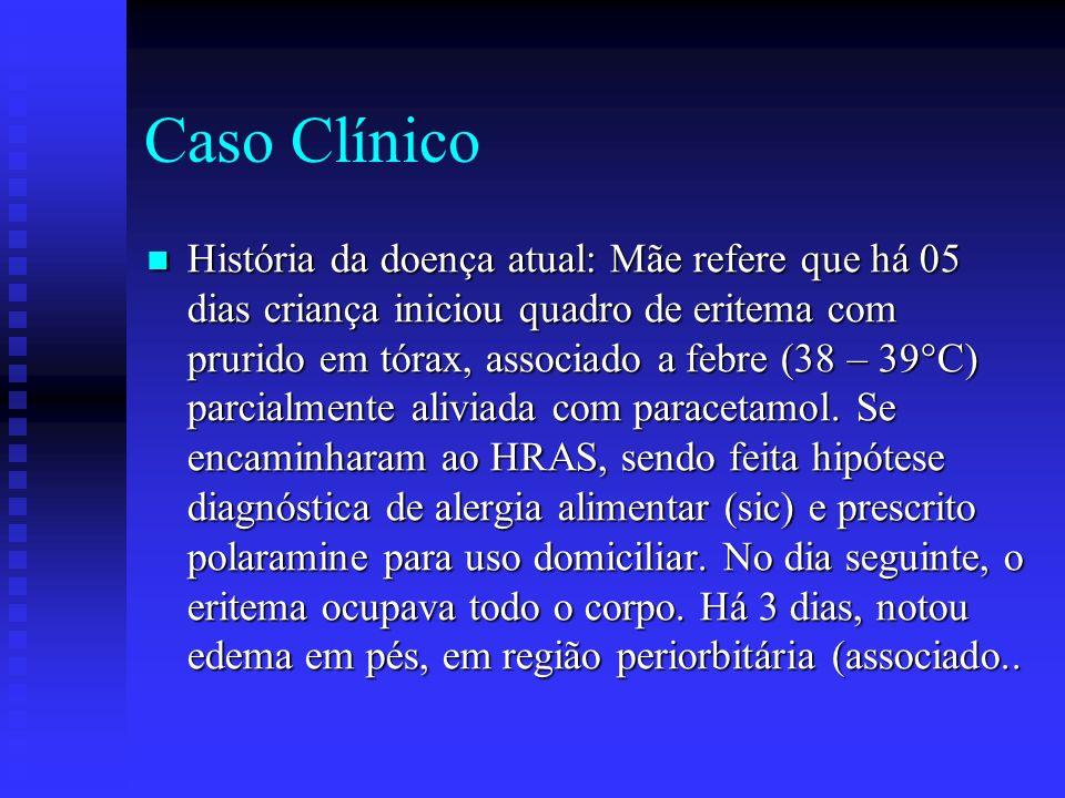 Caso Clínico História da doença atual: Mãe refere que há 05 dias criança iniciou quadro de eritema com prurido em tórax, associado a febre (38 – 39°C) parcialmente aliviada com paracetamol.