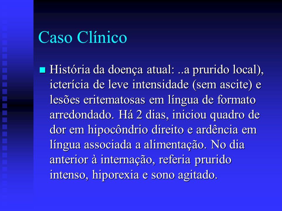 Caso Clínico Evolução: Evolução: - 14/02/06 internada no PS, iniciada imunoglobulina humana venosa e AAS.