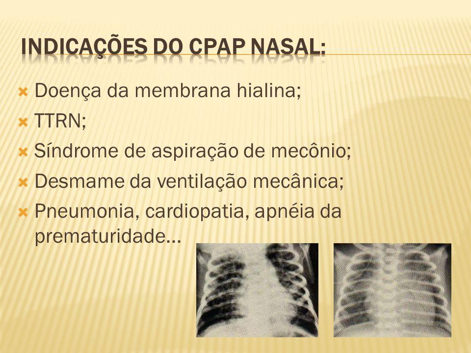 Doença da membrana hialina; TTRN; Síndrome de aspiração de mecônio; Desmame da ventilação mecânica; Pneumonia, cardiopatia, apnéia da prematuridade...
