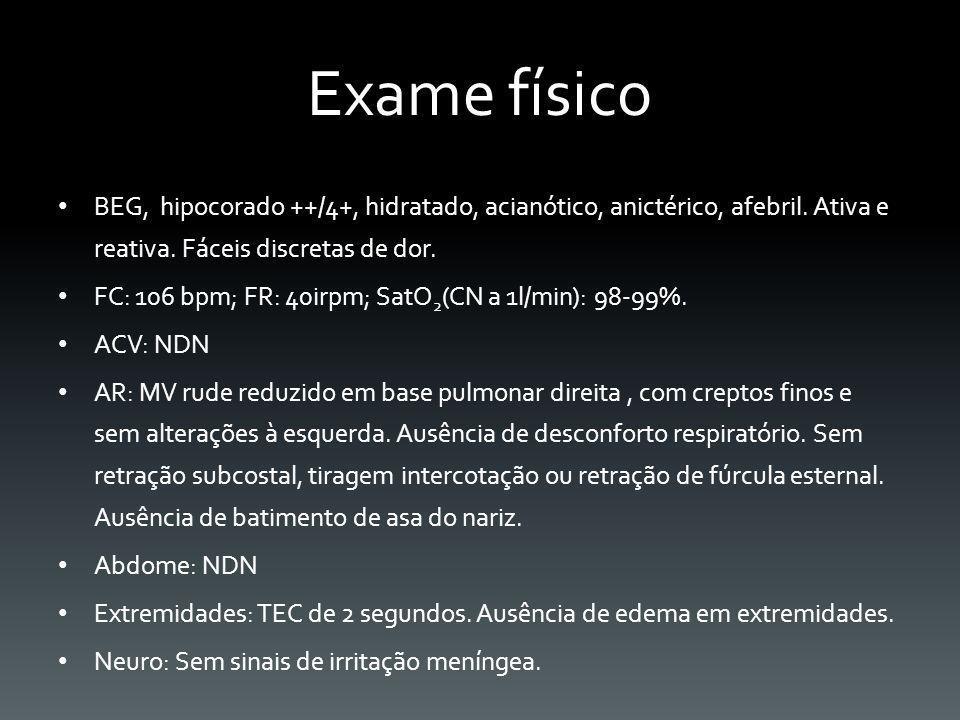 Exame físico BEG, hipocorado ++/4+, hidratado, acianótico, anictérico, afebril. Ativa e reativa. Fáceis discretas de dor. FC: 106 bpm; FR: 40irpm; Sat