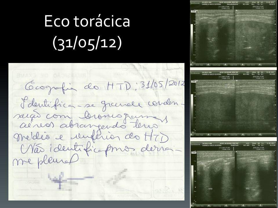 Eco torácica (31/05/12)