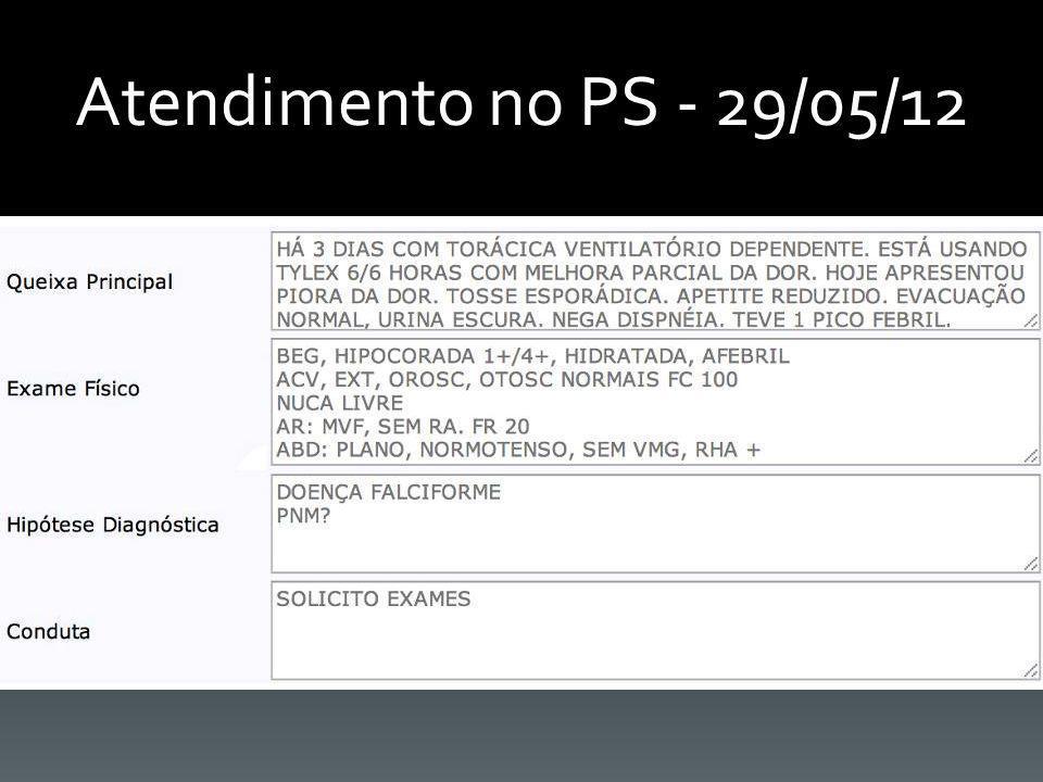 HEMOGRAMA COMPLETO Data: 29/05/2012ResultadoValor de Referência Hemácias2,314,5 - 5,5 M Hemoglobina7,913,5 - 14,5 Hematócrito20,7%40 - 50 VCM89,682 - 92 HCM34,228 - 30 CHCM38,232 - 36 RDW19,5%12 - 17% Policromasia(+), Hipocromia(+), Anisocitose(+), Drepanócitos(+) Leucócitos16.7004.000 - 14.000 Bastonetes1%0 - 4% Segmentados77%30 - 60% Eosinófilos1%1 - 5% Monócitos5%2 - 10% Linfócitos16%30 - 70% Plaquetas561.000150.000 - 450.000