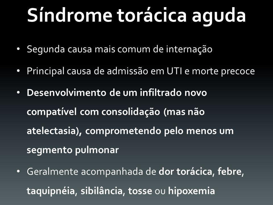 Síndrome torácica aguda Segunda causa mais comum de internação Principal causa de admissão em UTI e morte precoce Desenvolvimento de um infiltrado nov