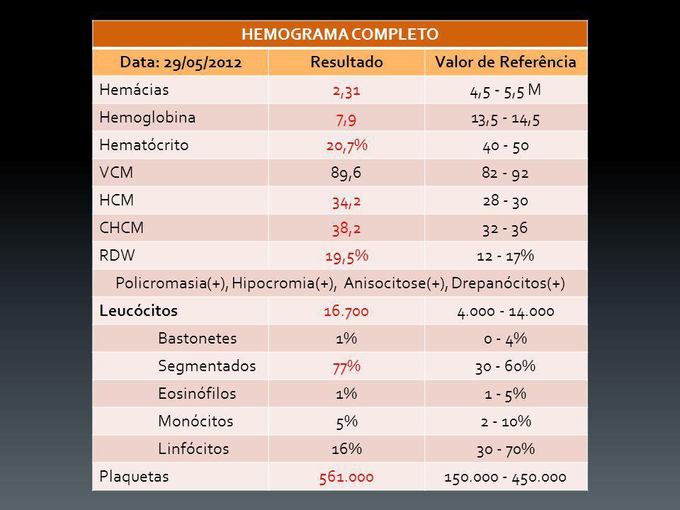 HEMOGRAMA COMPLETO Data: 29/05/2012ResultadoValor de Referência Hemácias2,314,5 - 5,5 M Hemoglobina7,913,5 - 14,5 Hematócrito20,7%40 - 50 VCM89,682 -