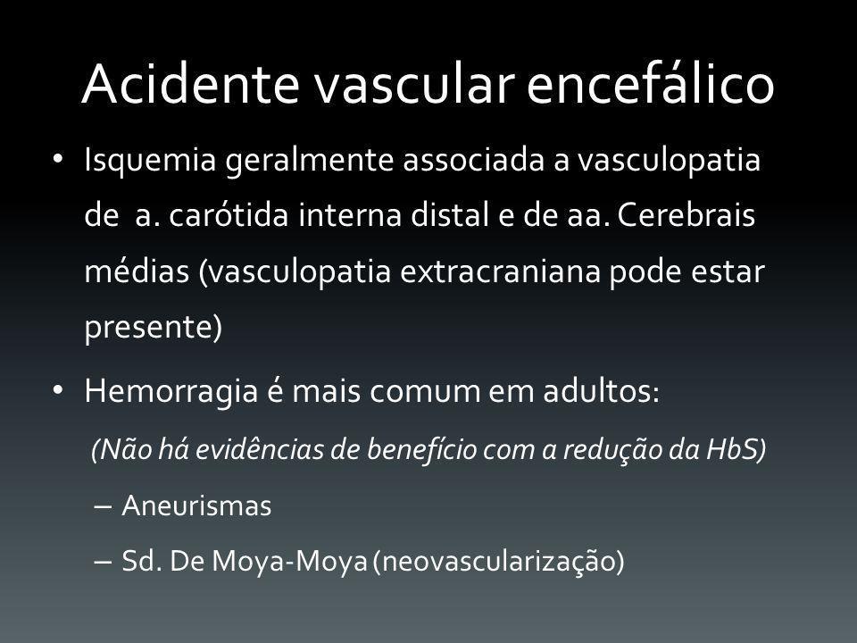Acidente vascular encefálico Isquemia geralmente associada a vasculopatia de a. carótida interna distal e de aa. Cerebrais médias (vasculopatia extrac