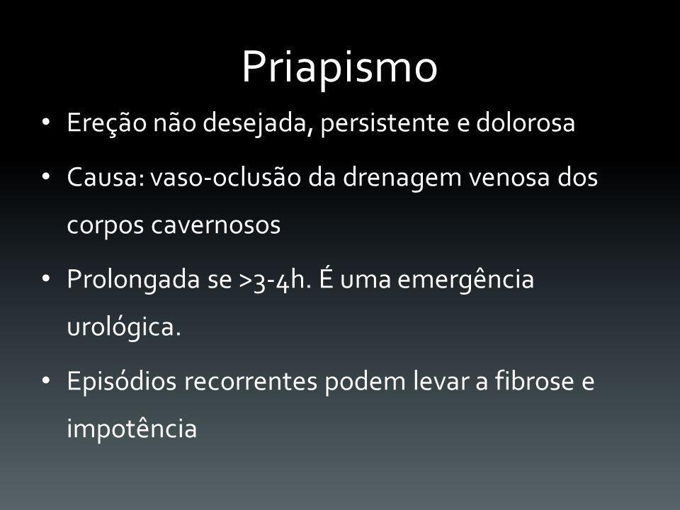 Priapismo Ereção não desejada, persistente e dolorosa Causa: vaso-oclusão da drenagem venosa dos corpos cavernosos Prolongada se >3-4h. É uma emergênc