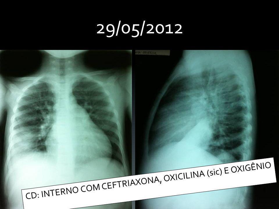 Admissão Ala A- 30/05/2012 QP: Dor torácica há 3 dias HMA: Criança portadora de Doença Falciforme SS, em acompanhamento no Hospital da Criança.