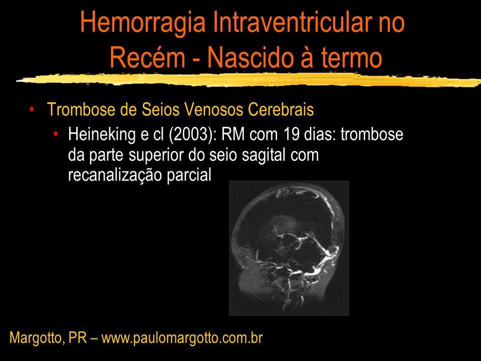 Hemorragia Intraventricular no Recém - Nascido à termo Trombose de Seios Venosos Cerebrais Heineking e cl (2003): RM com 19 dias: trombose da parte su