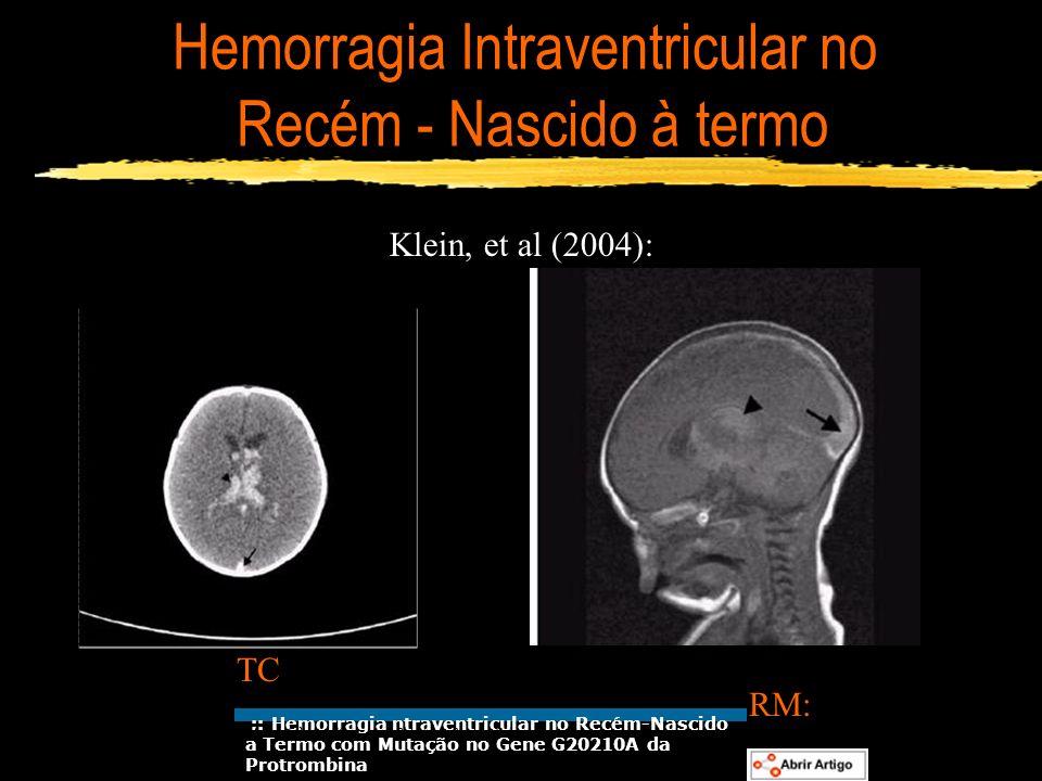 Hemorragia Intraventricular no Recém - Nascido à termo Klein, et al (2004): TC RM: :: Hemorragia ntraventricular no Recém-Nascido a Termo com Mutação
