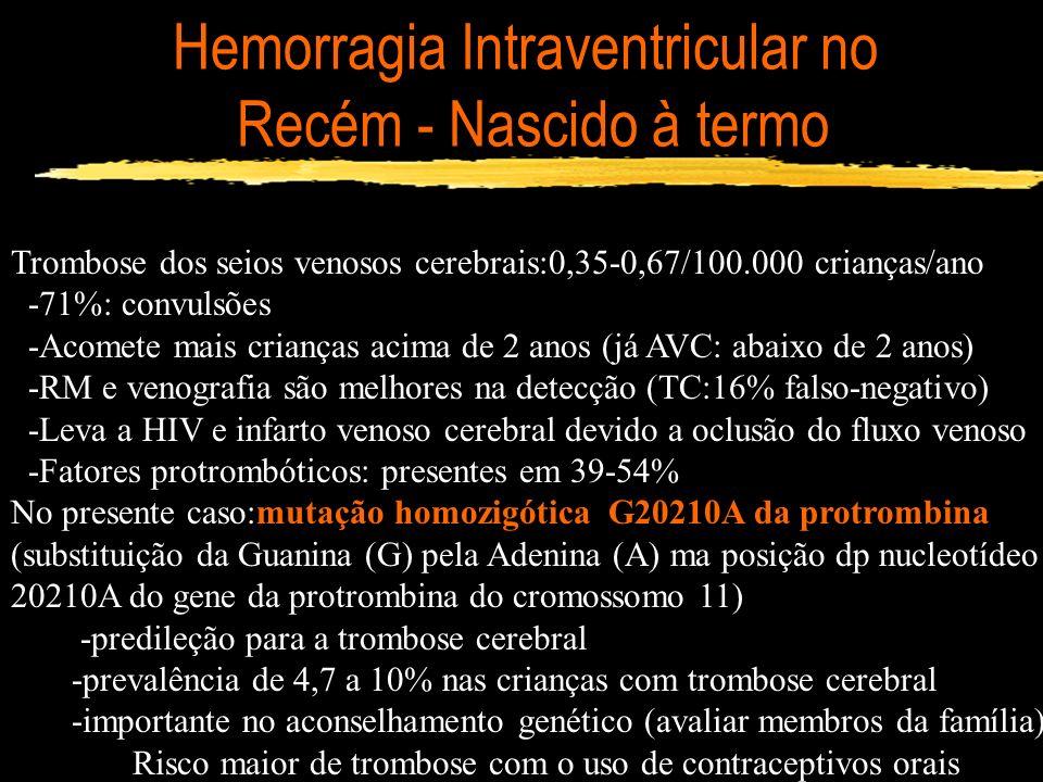 Hemorragia Intraventricular no Recém - Nascido à termo Trombose dos seios venosos cerebrais:0,35-0,67/100.000 crianças/ano -71%: convulsões -Acomete m