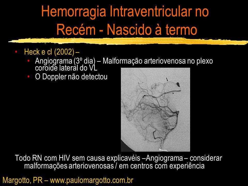 Hemorragia Intraventricular no Recém - Nascido à termo Heck e cl (2002) – Angiograma (3º dia) – Malformação arteriovenosa no plexo coroide lateral do
