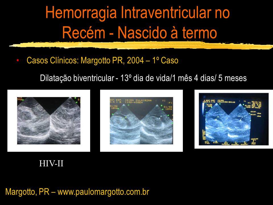 Hemorragia Intraventricular no Recém - Nascido à termo Casos Clínicos: Margotto PR, 2004 – 1º Caso Dilatação biventricular - 13º dia de vida/1 mês 4 d